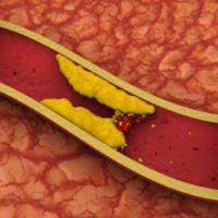 Yüksek Kolesterol Belirtileri