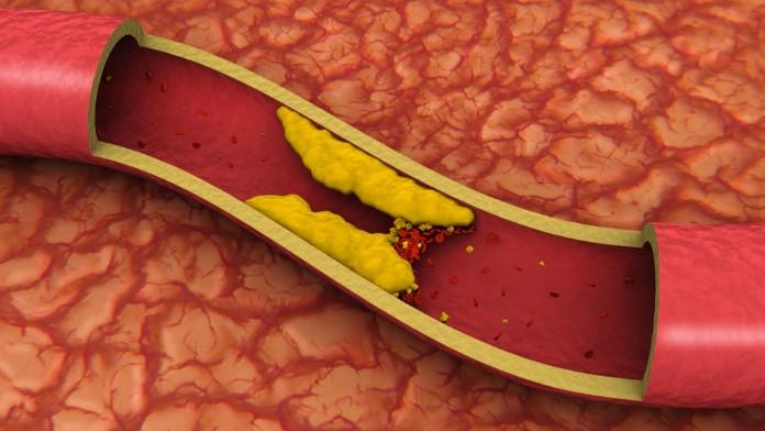 Yüksek Kolesterol Sebepleri
