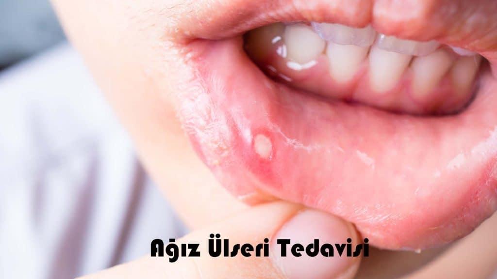 Ağız Ülseri Tedavisi