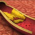 Kolesterolü Yükselten Besinler