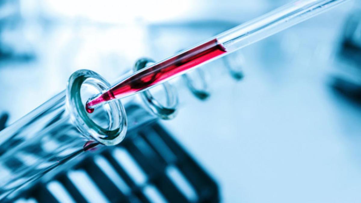HCT hematokrit nedir